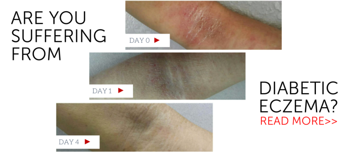 Diabetic Eczema ended in 4 days